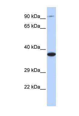 Western blot - BBS5 antibody (ab85433)