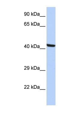 Western blot - Kaptin antibody (ab85449)