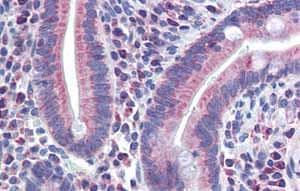 Immunohistochemistry (Formalin/PFA-fixed paraffin-embedded sections)-Anti-PXR antibody(ab85451)