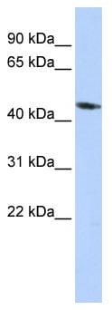 Western blot - KCNJ1 antibody (ab85479)