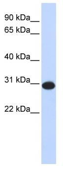 Western blot - CAMLG antibody (ab85480)