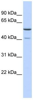 Western blot - METT5D1  antibody (ab85481)