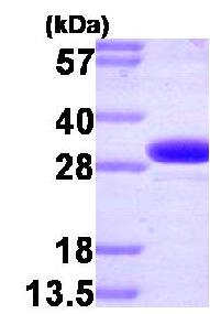 SDS-PAGE - Carbonic Anhydrase II protein (Human) (ab85484)