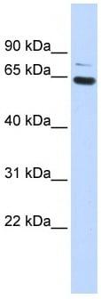 Western blot - ZNF74 antibody (ab85506)