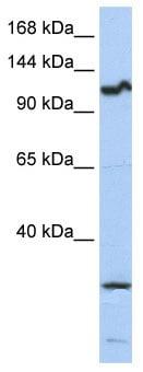 Western blot - OSMR antibody (ab85575)
