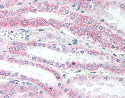 Immunohistochemistry (Formalin/PFA-fixed paraffin-embedded sections) - VAMP5 antibody (ab85581)