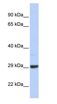 Western blot - ZCCHC24 antibody (ab85582)