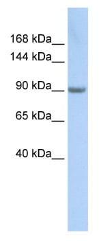 Western blot - MARS antibody (ab85583)