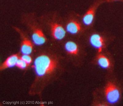 Immunocytochemistry/ Immunofluorescence - Bile Acid Receptor NR1H4 antibody (ab85606)