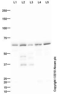 Western blot - 5HT1A Receptor antibody (ab85615)