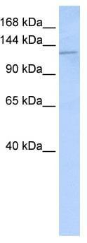 Western blot - Desmoglein 2 antibody (ab85632)