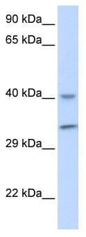 Western blot - ALKBH3 antibody (ab85636)