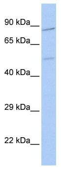 Western blot - ZNF585B antibody (ab85640)