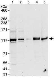 Western blot - HERC4 antibody (ab85732)