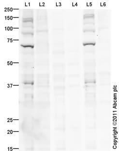 Western blot - Chk2 (phospho T68) antibody (ab85743)