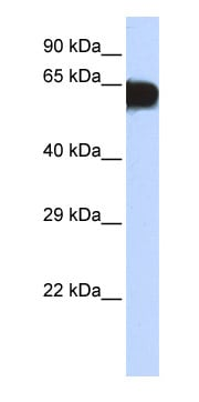 Western blot - TBX18 antibody (ab85751)