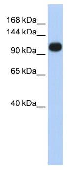 Western blot - SERCA3 ATPase antibody (ab85753)