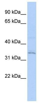 Western blot - RNF113A antibody (ab85797)