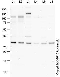 Western blot - Interferon beta antibody (ab85803)