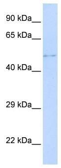 Western blot - TPRX1 antibody (ab85805)