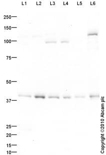 Western blot - MATH2/NEUROD6 antibody (ab85824)
