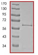 SDS-PAGE - PKR protein (Active) (ab85838)