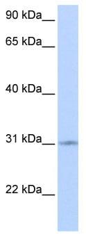 Western blot - ZNF146 antibody (ab85845)