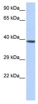 Western blot - HOXA2 antibody (ab85848)