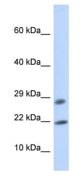 Western blot - OCIAD2 antibody (ab85884)
