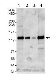 Western blot - ZNF574 antibody (ab85933)