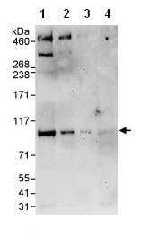 Western blot - BCAR3 antibody (ab85940)