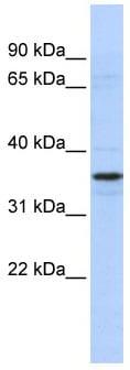 Western blot - ADA2a antibody (ab86109)