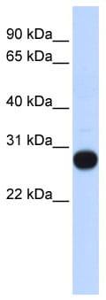 Western blot - TCEAL4 antibody (ab86110)