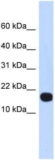 Western blot - ID4 antibody (ab86113)