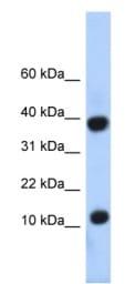 Western blot - PCBD1 antibody (ab86155)