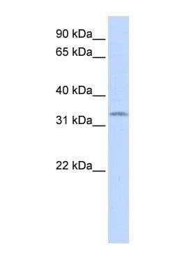 Western blot - SOX1 antibody (ab86162)