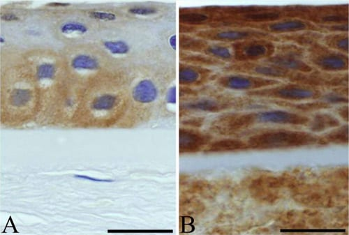 Immunohistochemistry (Formalin/PFA-fixed paraffin-embedded sections) - Anti-Tenascin C antibody [DB7] (ab86182)