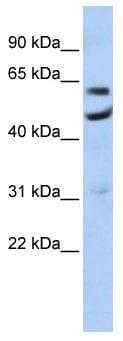 Western blot - CNOT6 antibody (ab86209)