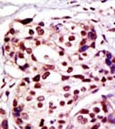 Immunohistochemistry (Formalin/PFA-fixed paraffin-embedded sections) - Anti-XIAP antibody - N-terminal (ab86229)