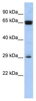 Western blot - c6orf223 antibody (ab86232)