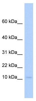 Western blot - PLAC9 antibody (ab86234)