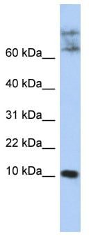 Western blot - CKLF antibody (ab86264)