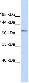 Western blot - FOG1 antibody (ab86281)