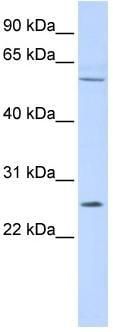 Western blot - FAM124A antibody (ab86282)