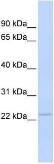 Western blot - Proteasome 20S beta 3 antibody (ab86284)