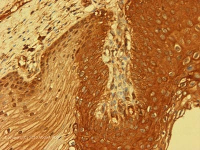 Immunohistochemistry (Formalin/PFA-fixed paraffin-embedded sections) - Bag3 antibody (ab86298)