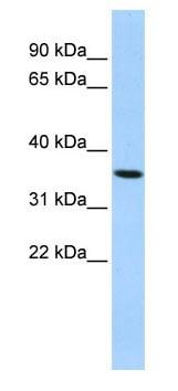 Western blot - PAQR6 antibody (ab86304)