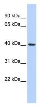 Western blot - Insig1 antibody (ab86350)