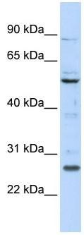 Western blot - HOXC5 antibody (ab86381)