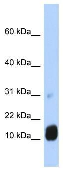 Western blot - GCHFR antibody (ab86384)